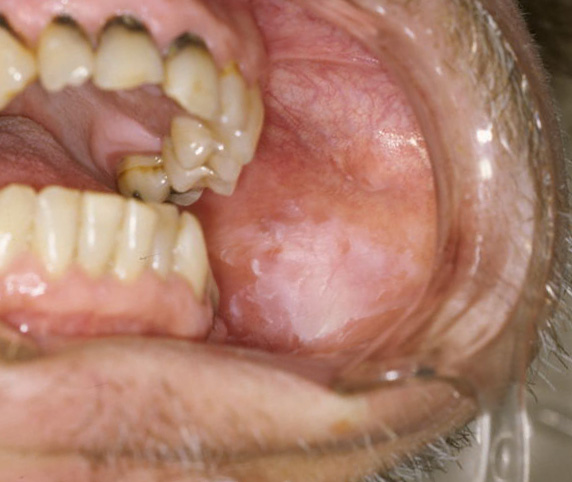papilloma dental definition