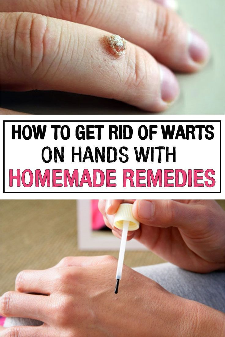 7 Best home remedies images in | Home remedies, Remedies, Health remedies