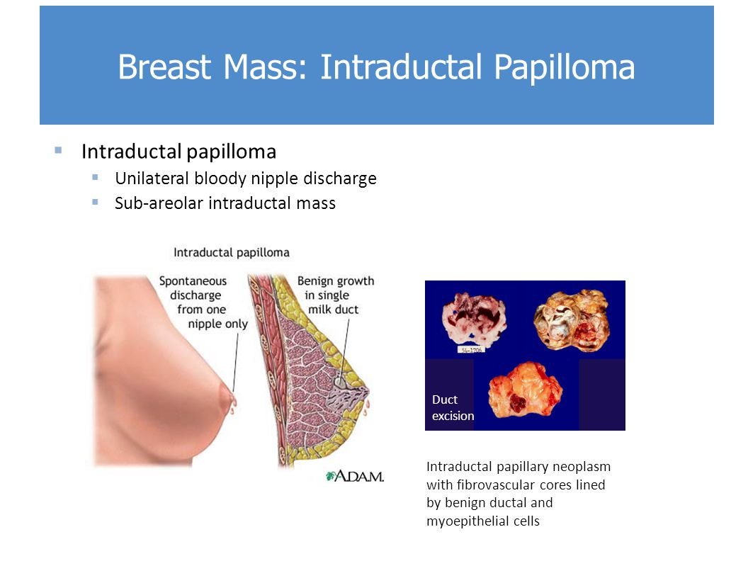 treatment of breast duct papilloma dezintoxicare cluj