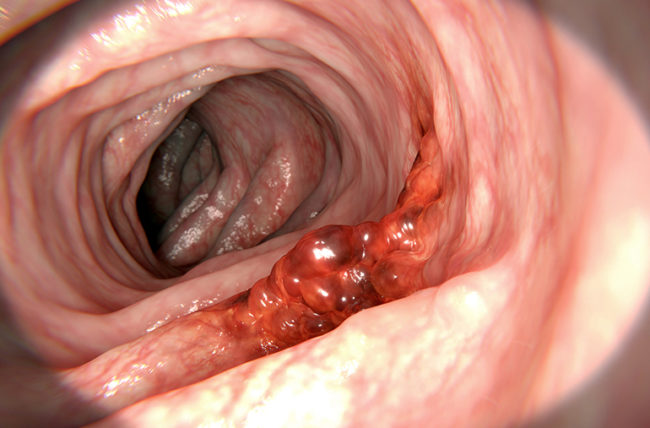 colorectal cancer blood in stool)