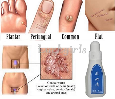 hpv wart removal includes)