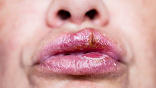 hpv herpes labial)