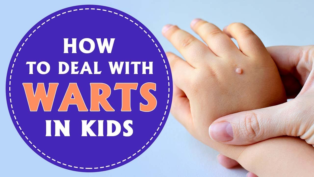 foot warts in children+pictures ciuperci trase la tigaie
