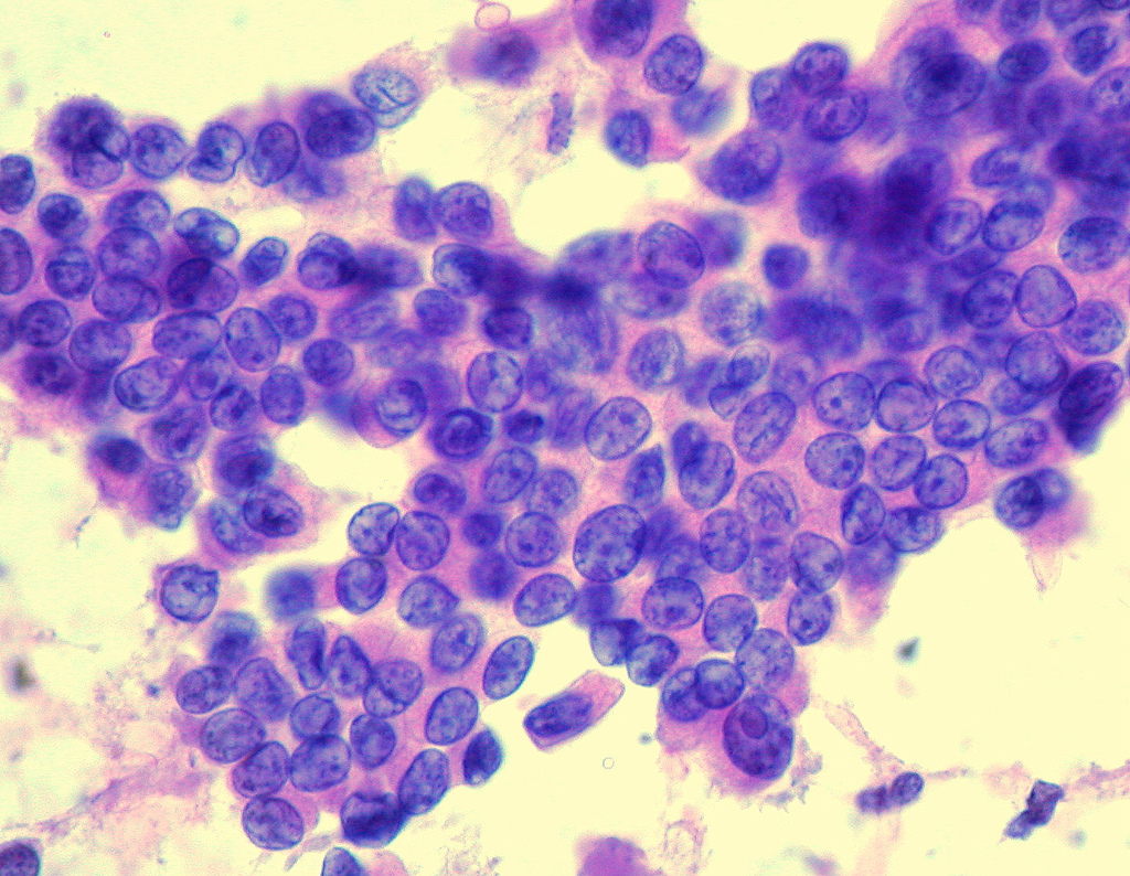 papillary thyroid cancer hcc