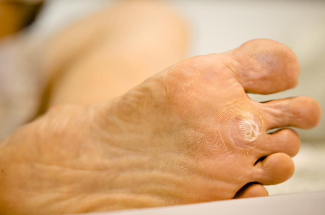 wart in foot causes