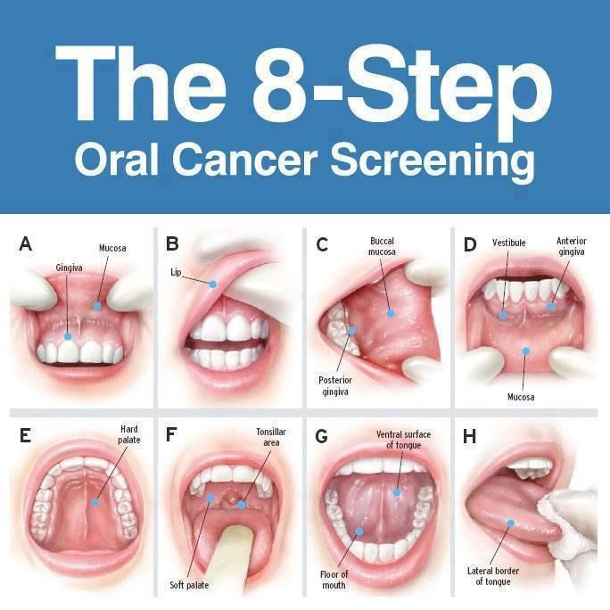 cancer gingival simptome)