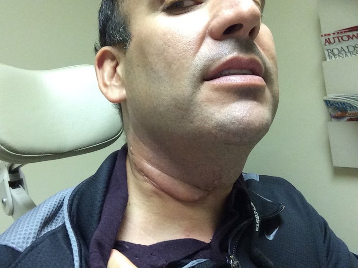 throat cancer caused by hpv virus que es el cancer de mama