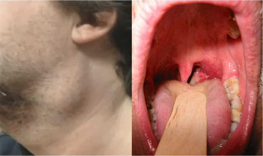 hpv virus on tongue pictures