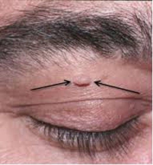 wart on eyelid removal