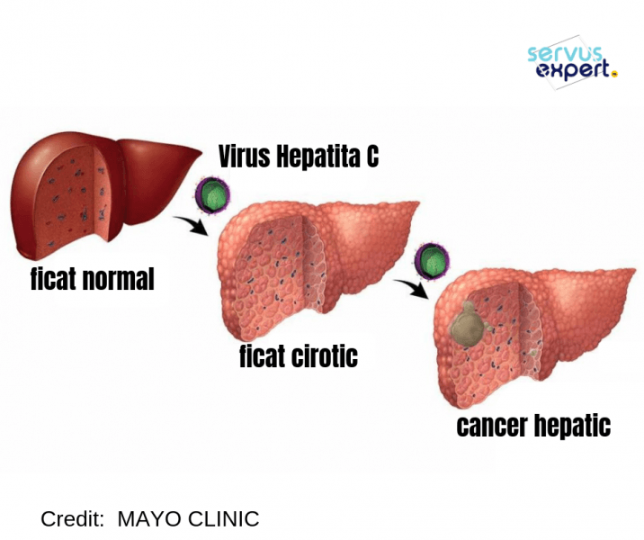 cancerul hepatic se transmite