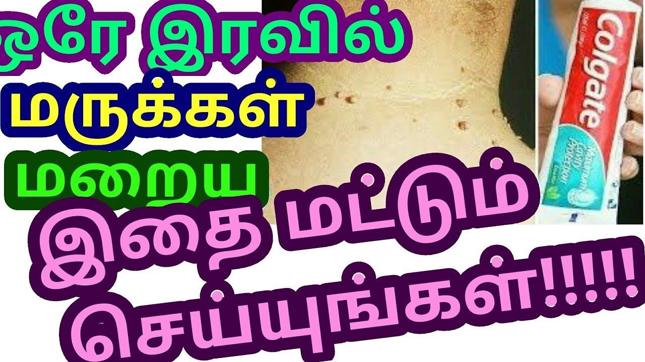 warts removal home remedy in tamil)