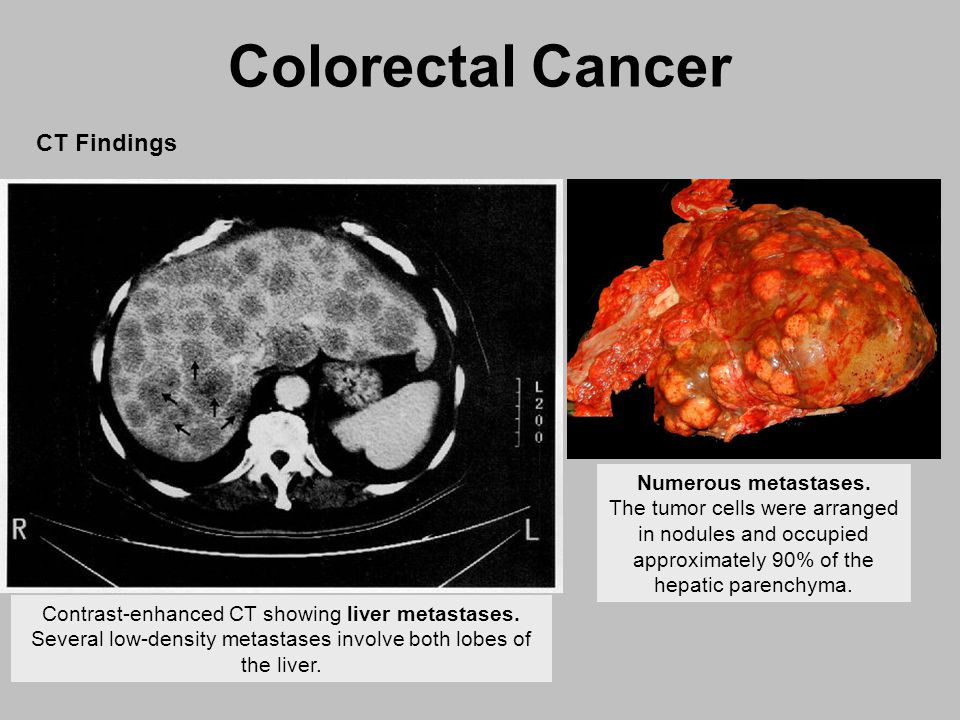 Colentina Surgical Clinic Experience in Treatment of Rectal Cancer