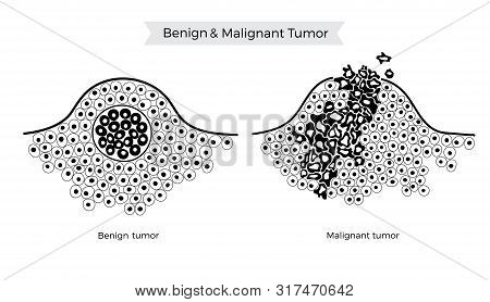 cancer and benign tumors