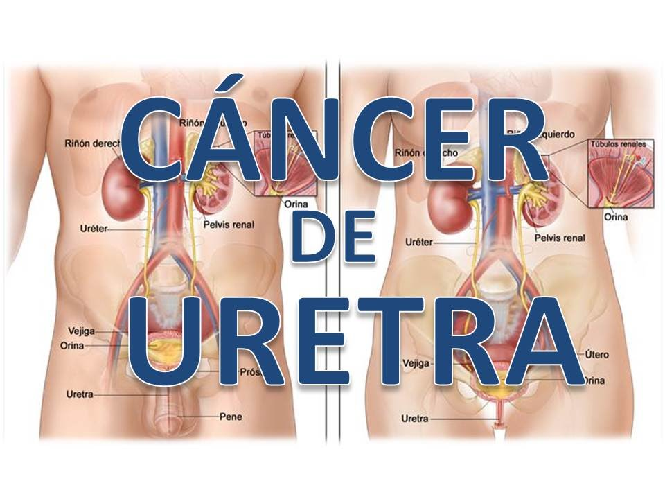 cancer uretral femenino)