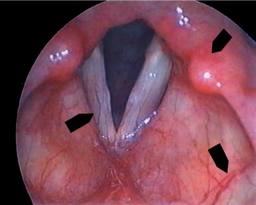 is laryngeal papilloma contagious