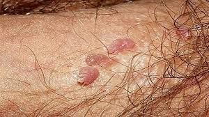 hpv warts last how long)