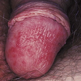 hpv related warts)