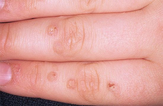 Warts on hands cancer
