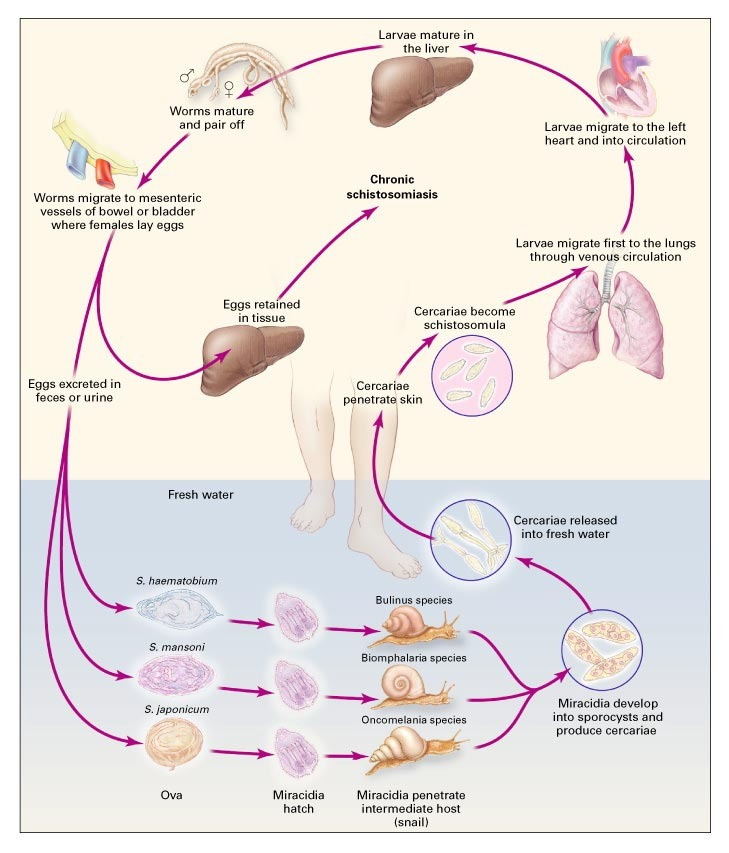 schistosomiasis effects)