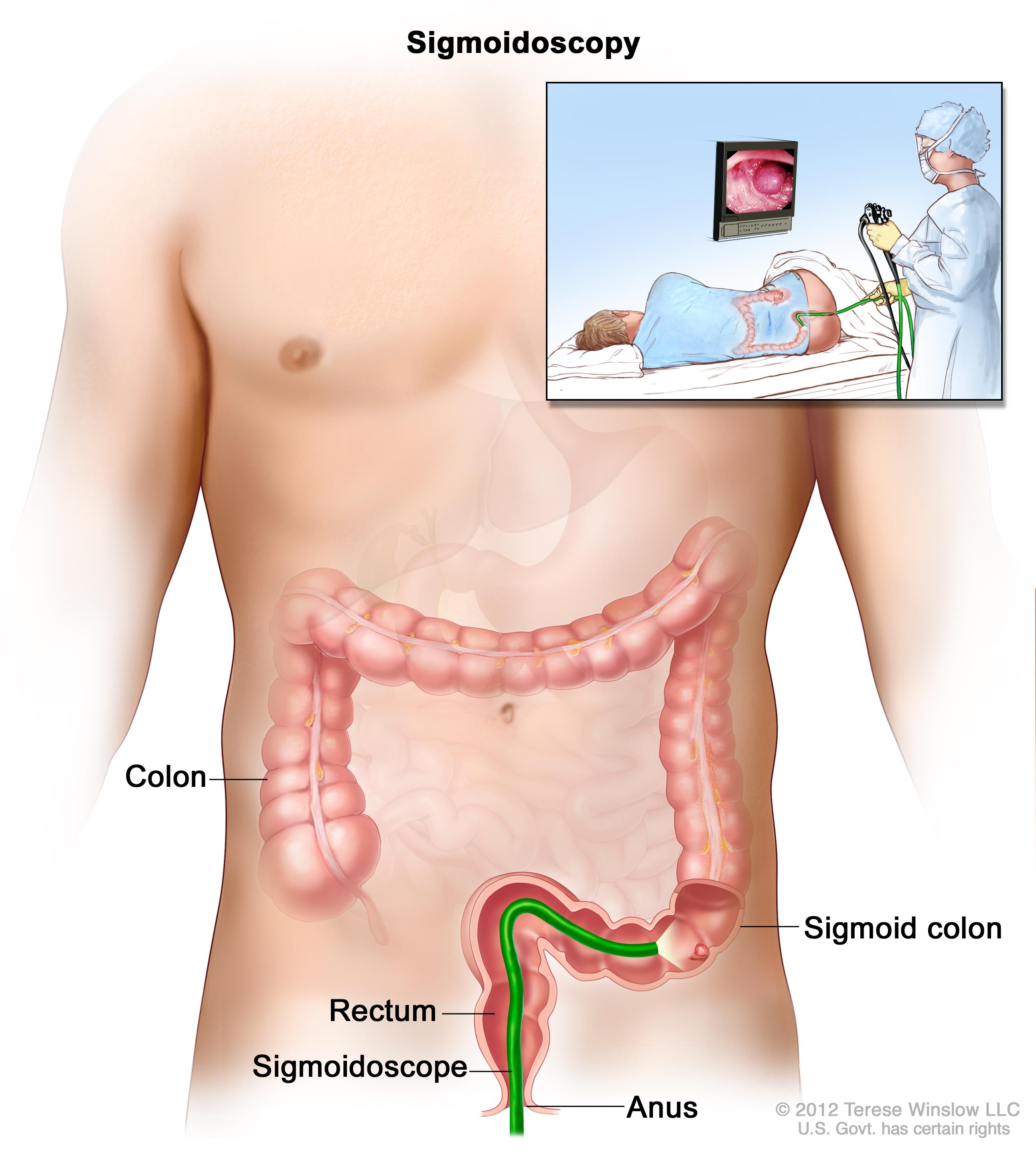 cancer rectal malign