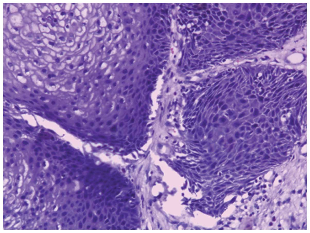 inverted papilloma cell carcinoma)