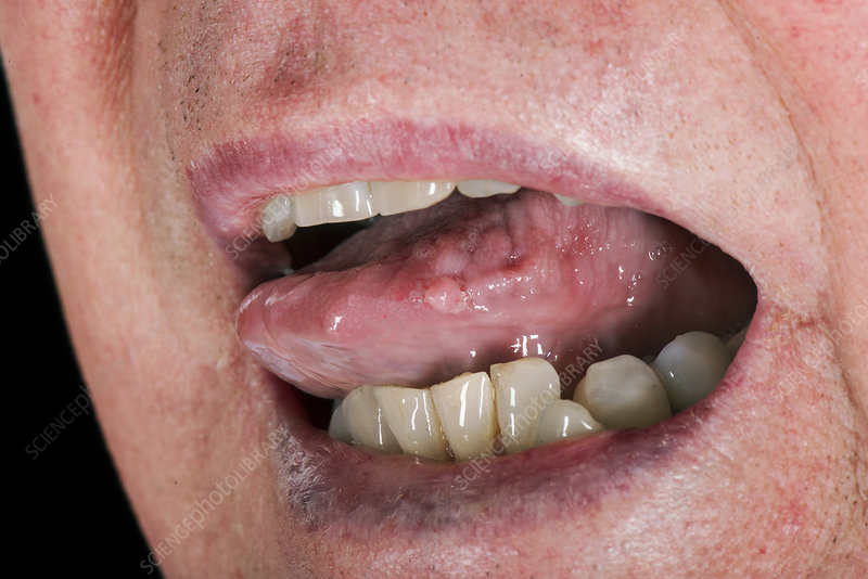 benign wart on tongue