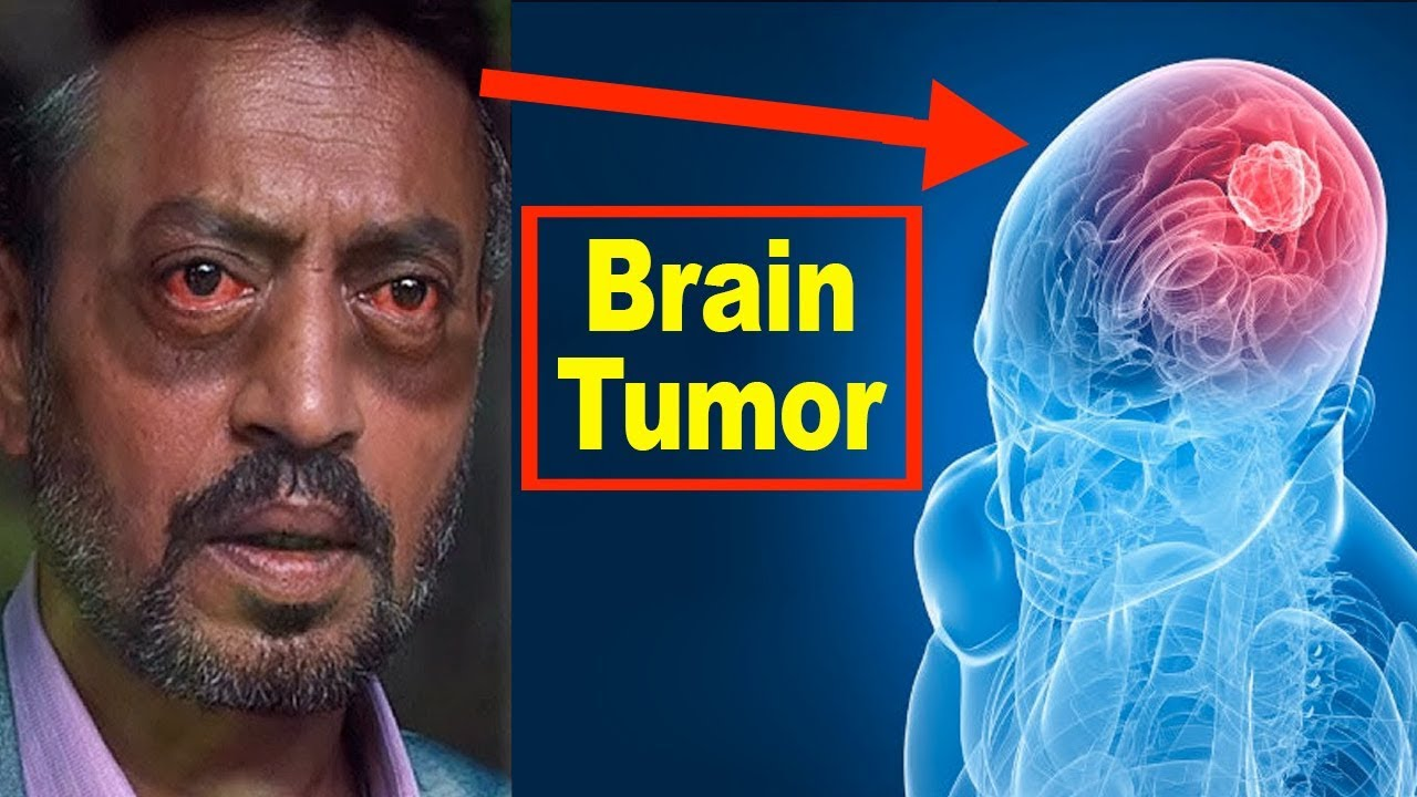 neuroendocrine cancer brain)