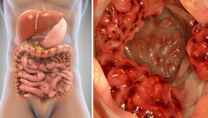 cancer tratament colon what is squamous papilloma on the skin