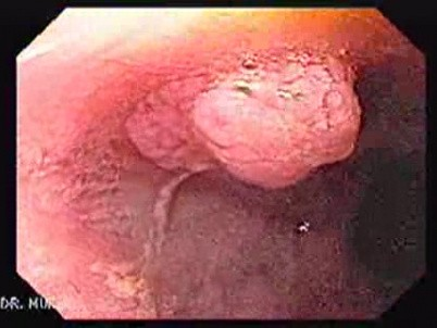 squamous cell papilloma go away