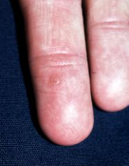 hpv virus and warts on hands