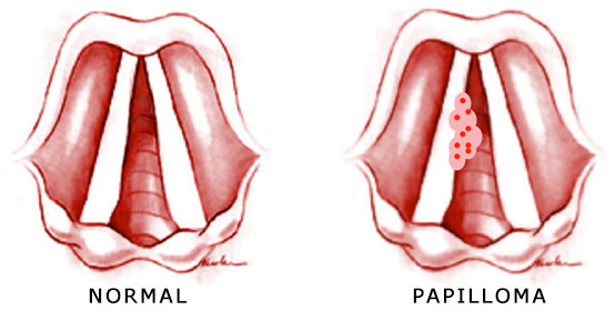 papilloma throat surgery)