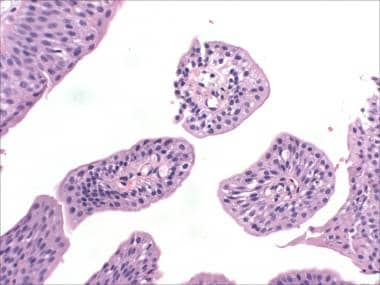 transitional cell papilloma of the urinary bladder)