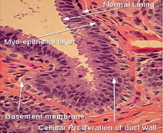 intraductal papilloma ductal hyperplasia)