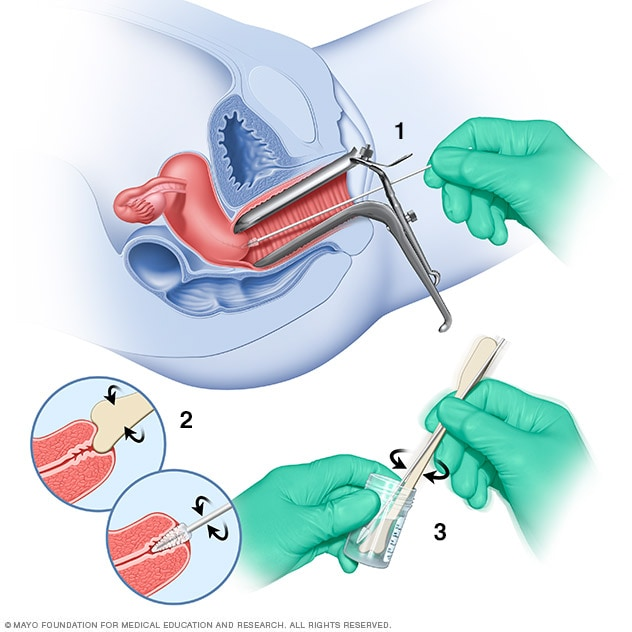 hpv condyloma treatment