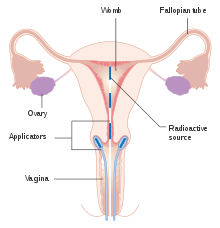 cervical cancer meaning