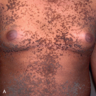 confluent and reticulated papillomatosis african american