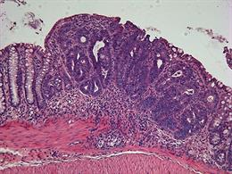 cancer de colon biopsia)