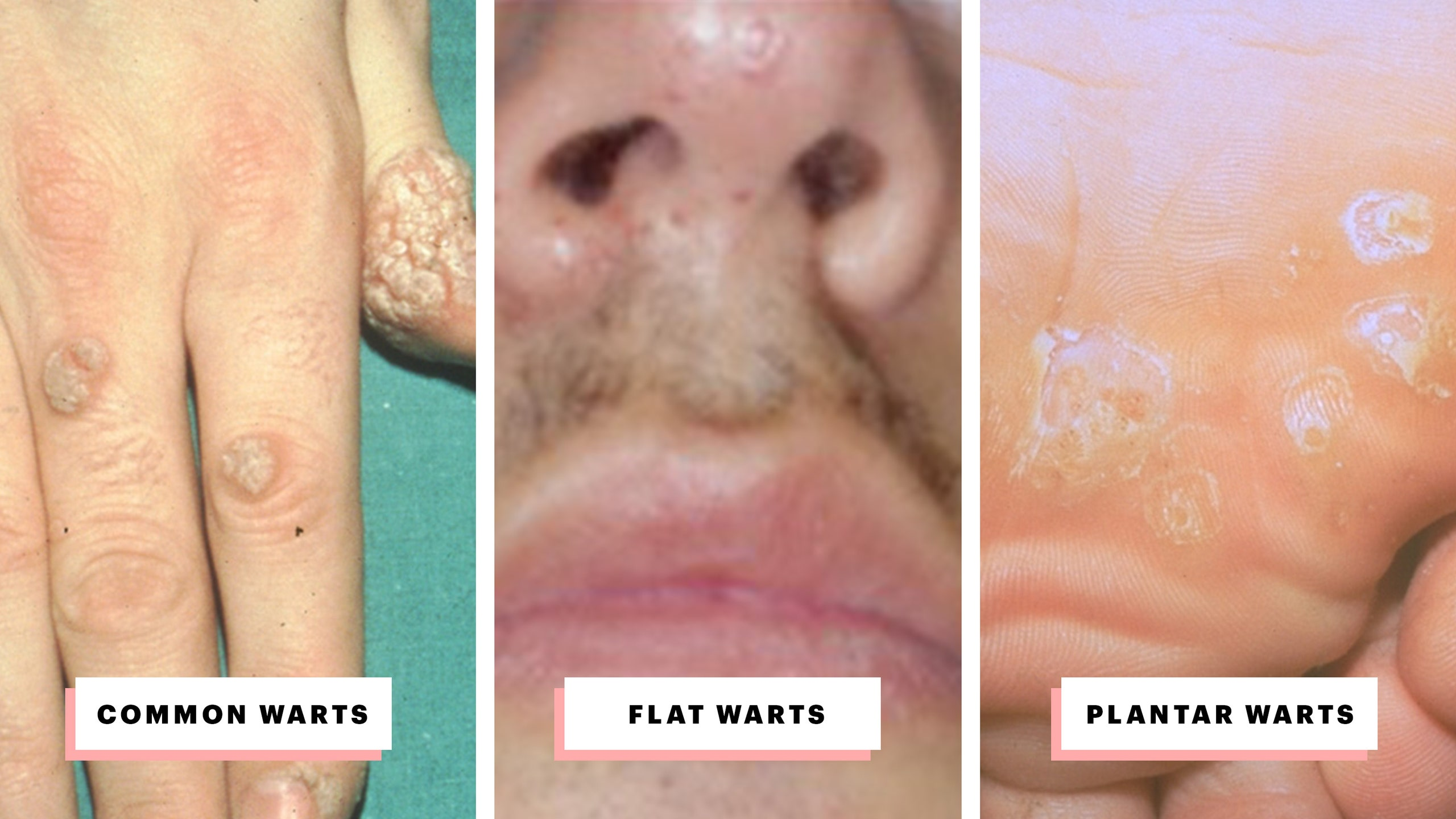 warts on hands stages