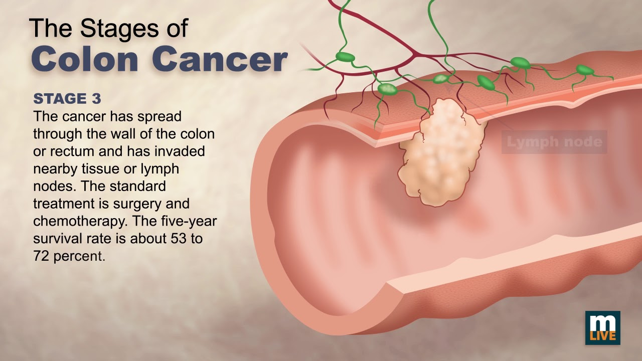 cancer colon lymph nodes survival rate