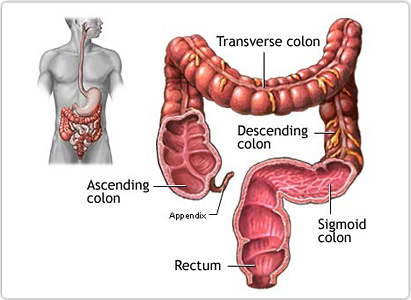 cancer colon pain