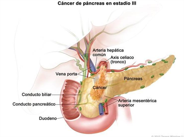cancer conducto biliar metastasis higado)