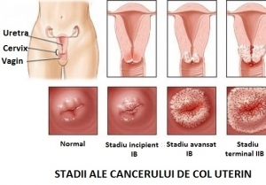 cancer de col uterin in prima faza