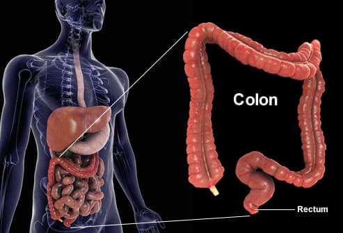 cancer de colon metastaza simptome