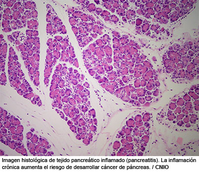 cancer de pancreas genes
