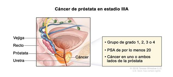 cancer de prostata nivel 1