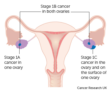 cancer endometrial stadiul 1)
