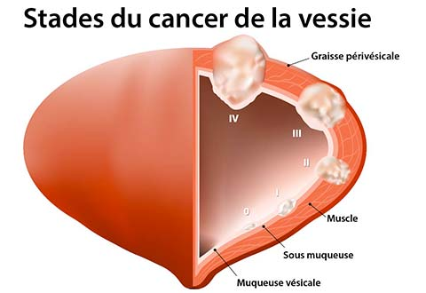 cancer feminin de la vessie)
