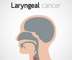 cancer laringian stadiu 4)