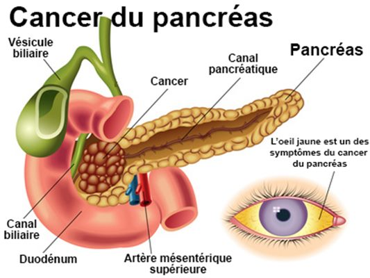 cancer pancreas symptomes