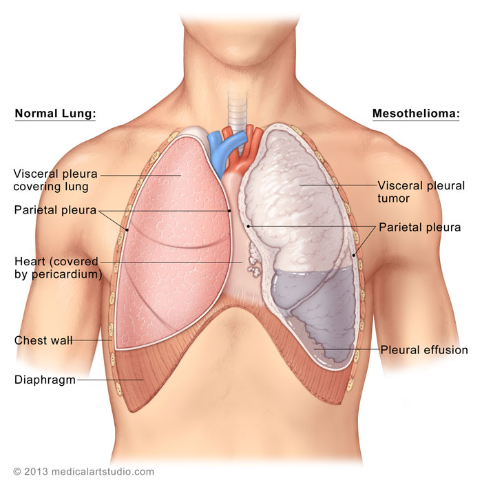 cancer pulmonar pleura
